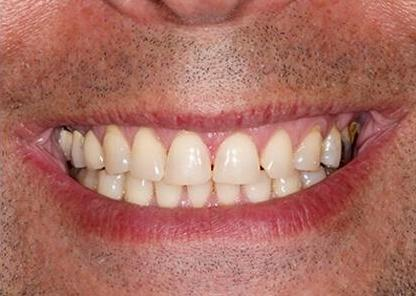 Ortho patient after pictures close up
