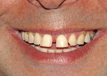 Ortho patient before pictures close up